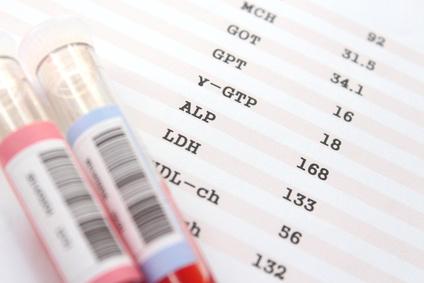 肝機能の検査一覧表
