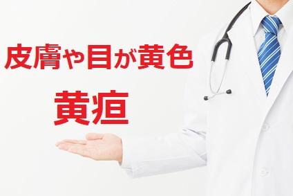 肝機能障害の症状 黄疸